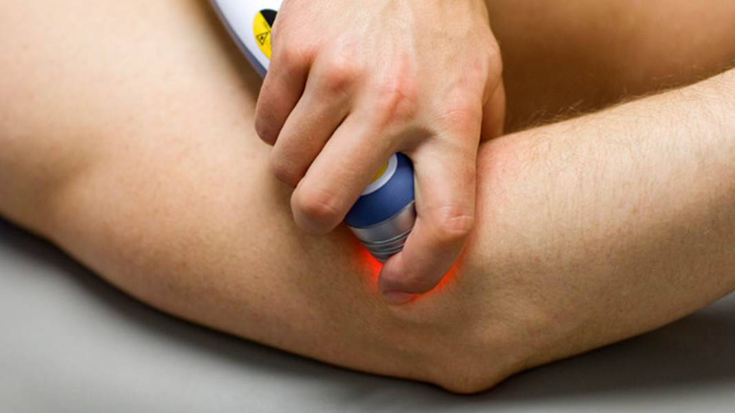 laser therapy in fitzroy north